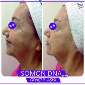 Somon-