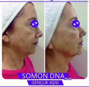 Somon-1
